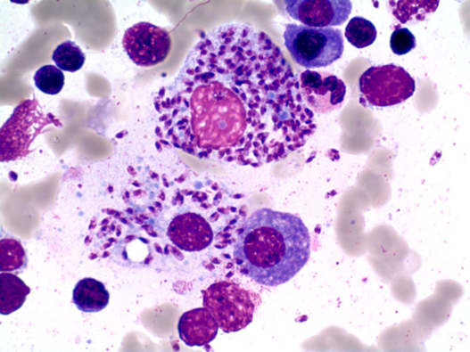 Clinical Case-Pancytopenia